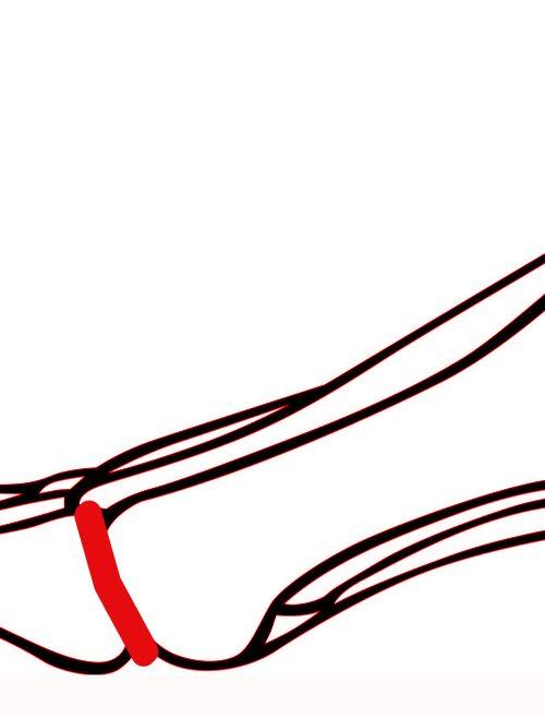 Artrodeza stawu palucha