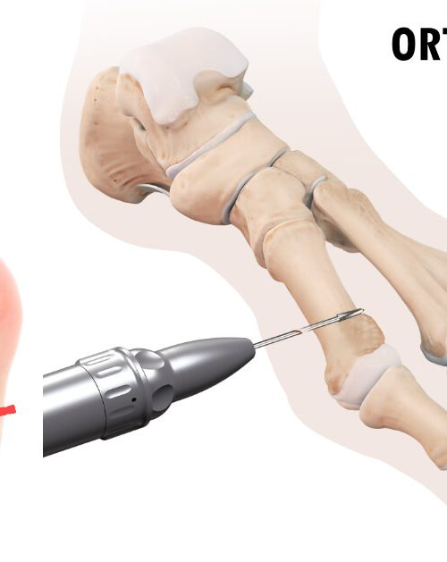 metody operacji haluksa