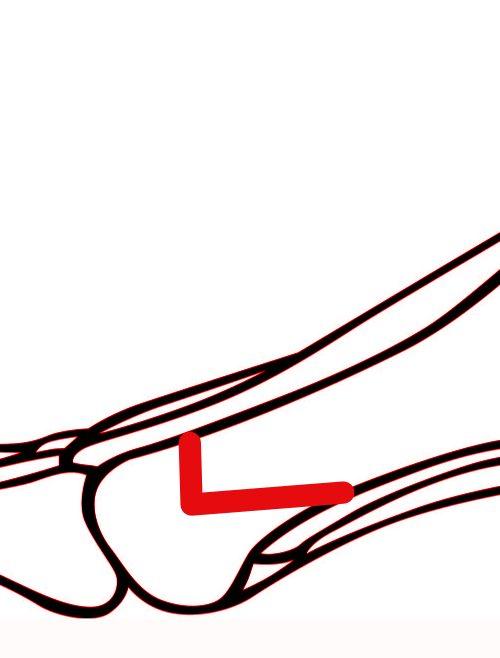 MICA - małoinwazyjna metoda operacji haluksów