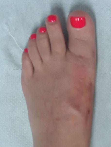 MICA małoonwazyjne operacje haluksów