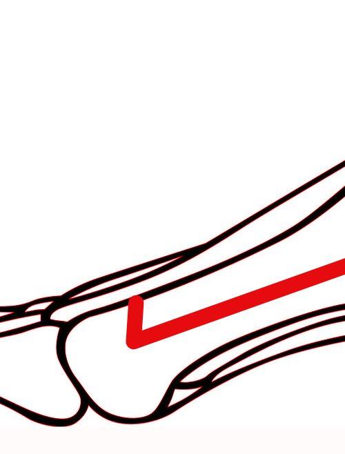 Osteotomia SCARF - korekcja haluksa palucha koślawego