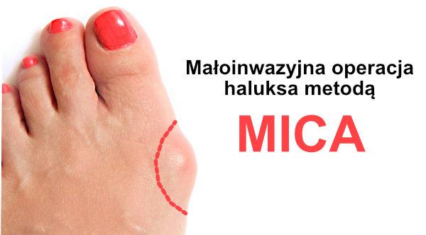 MICA haluksy