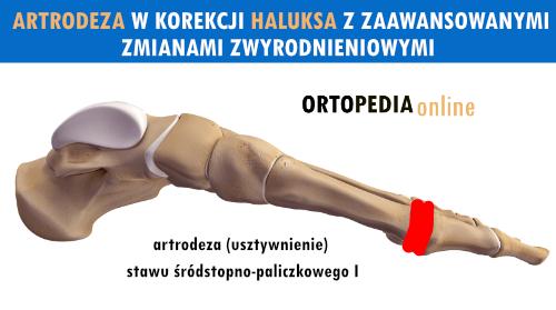 Artrodeza haluksa ze zmianami zwyrodnieniowymi - usztywnienie stawu MTP palucha