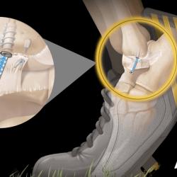 ATFL Internal Bracing - naprawa więzadła stawu skokowego