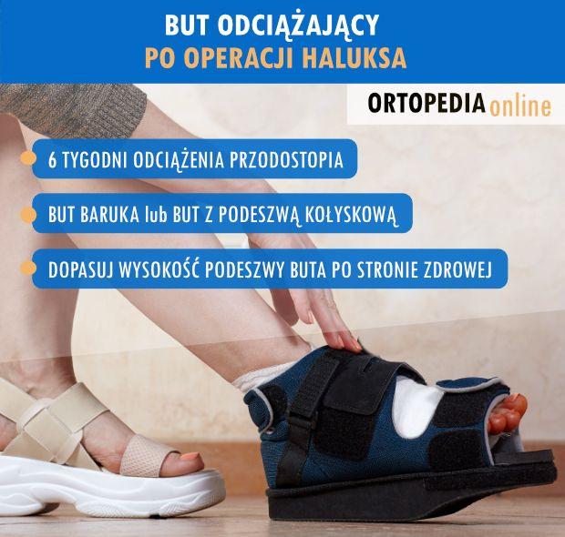 Jak długo nosić but ortopedyczny po operacji haluksa