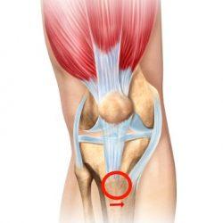 Osteotomia Fulkersona na zwichnięcie rzepki