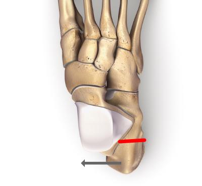 Osteotomia medializująca guz piętowy