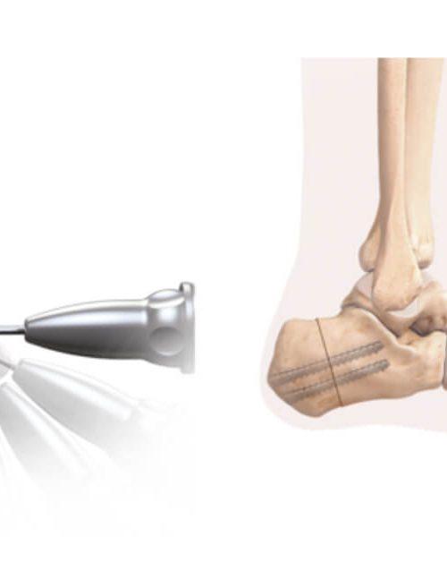 Osteotomia pięty