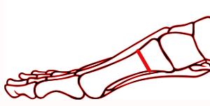 osteotomia pmow (proksymalna rozwierająca) I kości śródstopia