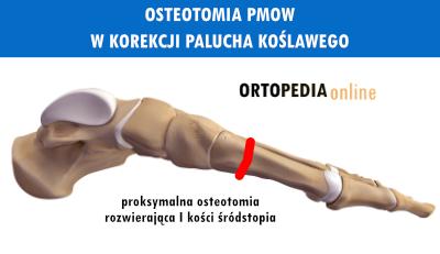 Proksymalna osteotomia rozwierająca PMOW palucha koślawego