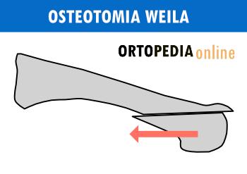Osteotomia Weila - metatarsalgia, płaskostopie poprzeczne