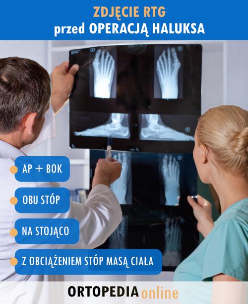 Operacja haluksa - jakie zdjęcie RTG wykonać?