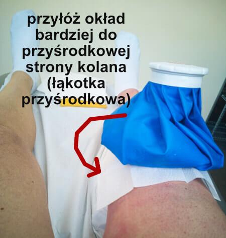 leczenie uszkodzonej łąkotki, co robić, okłady z lodu