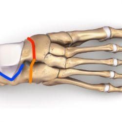 Operacja potrójna artrodeza stopy