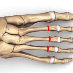 Osteotomia DMMO