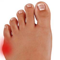 Operacja bunionette małego palca stopy