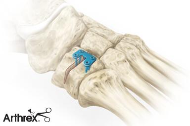 Osteotomia Cottona - płytka stabilizowana śrubami