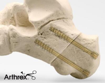 Osteotomia pięty śruby