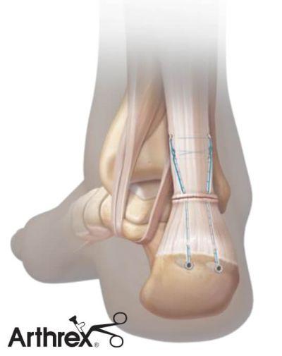 Szycie ścięgna Achillesa metodą małoinwazyjną PARS Arthrex - efekt