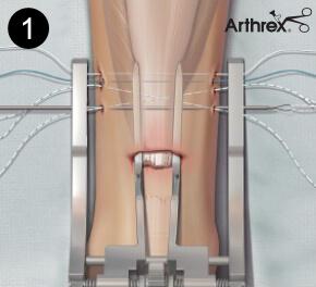 Małoinwazyjne szycie ścięgna Achillesa - specjalne instrumentarium Achilles PARS JIG System (Arthrex)