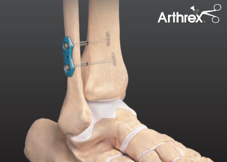 Stabilizacja więzozrostu TightRope z endobuttonem (Arthrex)