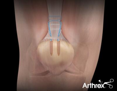 FiberWire - naprawa ścięgna mięśnia czworogłowego