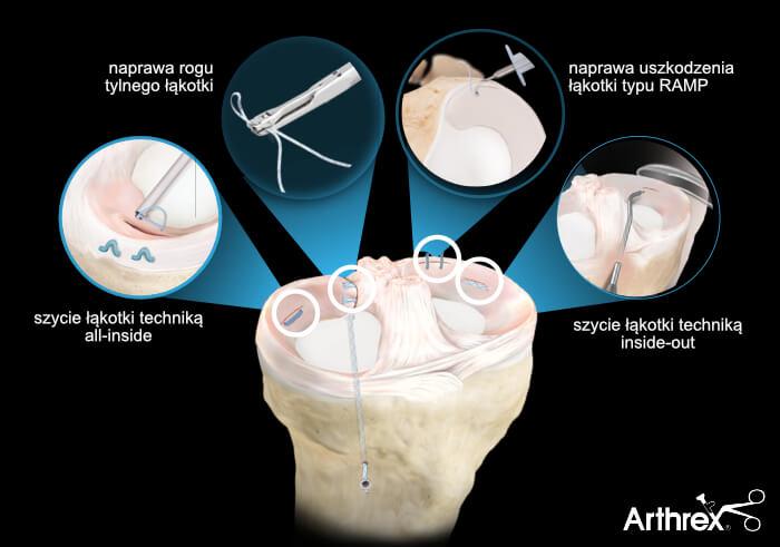 leczenie uszkodzonej łąkotki artroskopia kolana - różne techniki naprawy łąkotek