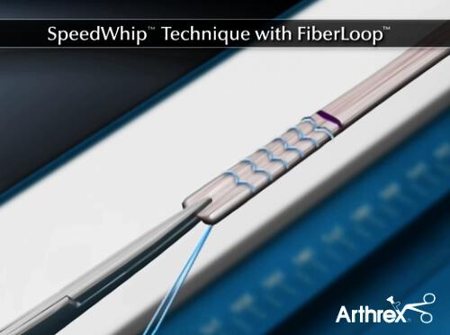 FiberLoop - obszywanie graftu