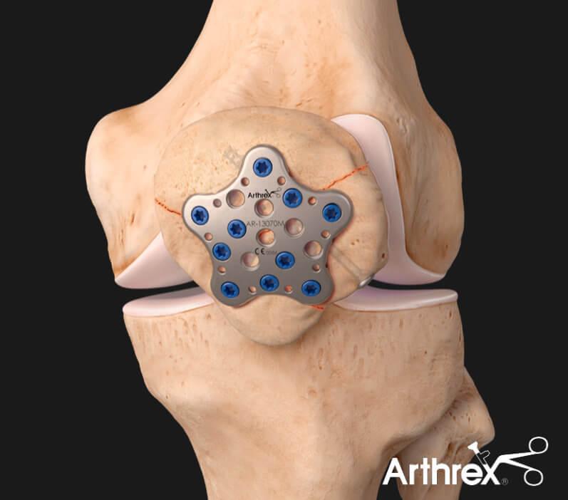 Leczenie złamania wieloodłamowego rzepki - płyta Arthrex