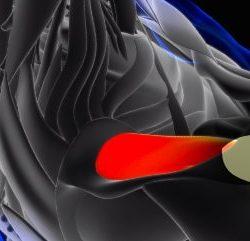 implant balonowy barku