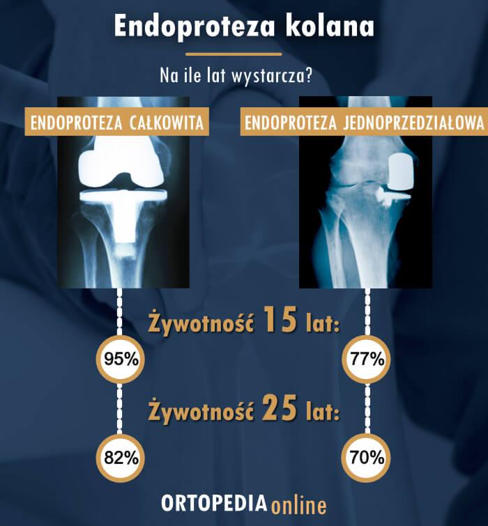 Endoproteza kolana - na ile lat wystarcza
