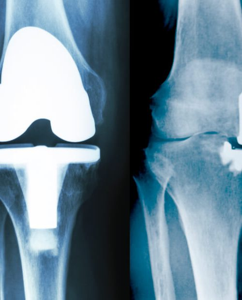 Endoproteza kolana